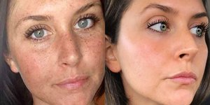 This Woman's Before-And-After Sun Damage Photo Is Going Viral