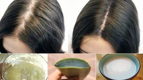 "<div class=""photoCaption"">6 Proven Home Remedies for Hair Loss - YouTube</div>"