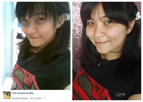 """<div class=""""photoCaption"""">Recreating my 10 years ago selfie, mumpung lagi rame  <a class=""""pink-url"""" target=""""_blank"""" href=""""http://m.clozette.co.id/search/query?term=10yearchallenge&siteseach=Submit"""">#10yearchallenge</a> dan model rambut ternyata lagi mirip 😂.Both bareface. Same superman tees, same beads chocker, same dog hair clip. Yup, still have em! 😂.The different?- I was almost 17, now wayyyy past 17 🙆- tees supermannya ngetat cuy, weight different is almost 30kg 🙈🙈- flawless face back then, now acne everywhere. Ini ogut telat puber apa gimana? 🤔- panda eyes! Makin menjadi di 2019 🐼.I know, I know, 10 years ago me is better looking and with better body as well lol. Ga ada deh tu pubery hit me well, hit me hard with reality iyes 😂.Let's go back in time  <a class=""""pink-url"""" target=""""_blank"""" href=""""http://m.clozette.co.id/search/query?term=teamjadullebihkece....&siteseach=Submit"""">#teamjadullebihkece....</a> <a class=""""pink-url"""" target=""""_blank"""" href=""""http://m.clozette.co.id/search/query?term=10yearschallenge&siteseach=Submit"""">#10yearschallenge</a>  <a class=""""pink-url"""" target=""""_blank"""" href=""""http://m.clozette.co.id/search/query?term=2009vs2019&siteseach=Submit"""">#2009vs2019</a>  <a class=""""pink-url"""" target=""""_blank"""" href=""""http://m.clozette.co.id/search/query?term=2009&siteseach=Submit"""">#2009</a>  <a class=""""pink-url"""" target=""""_blank"""" href=""""http://m.clozette.co.id/search/query?term=2019&siteseach=Submit"""">#2019</a>  <a class=""""pink-url"""" target=""""_blank"""" href=""""http://m.clozette.co.id/search/query?term=bareface&siteseach=Submit"""">#bareface</a>  <a class=""""pink-url"""" target=""""_blank"""" href=""""http://m.clozette.co.id/search/query?term=asiangirl&siteseach=Submit"""">#asiangirl</a>  <a class=""""pink-url"""" target=""""_blank"""" href=""""http://m.clozette.co.id/search/query?term=asian&siteseach=Submit"""">#asian</a>  <a class=""""pink-url"""" target=""""_blank"""" href=""""http://m.clozette.co.id/search/query?term=bangs&siteseach=Submit"""">#bangs</a>  <a class=""""pink-url"""" target=""""_blank"""" href=""""http://m.clozette.co.id/search/query?"""